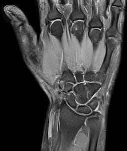 восстановление после операции на тазобедренный сустав фото