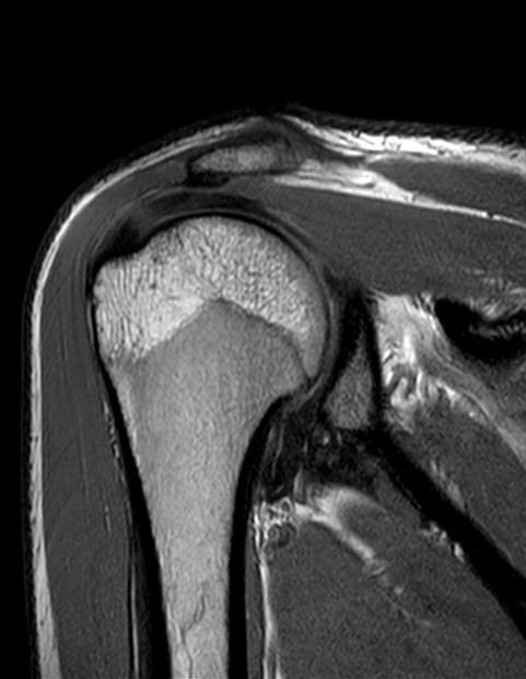 Как делают мрт плечевого сустава боль в суставе колена