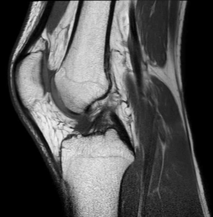 Что такое мрт в медицине коленного сустава жизнь с искусственным суставом тазобедренных суставов